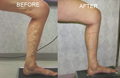 Nelson Vein & Surgical Services | Before and After | endovenous ablation followed by an ambulatory phlebectomy