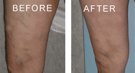 Nelson Vein & Surgical Services | Before and After | leg ulcer treatment