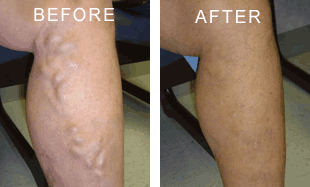 Nelson Vein & Surgical Services | Before and After | endovenous ablation