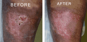Nelson Vein & Surgical Services | Before and After | recurrent leg ulcers treatment