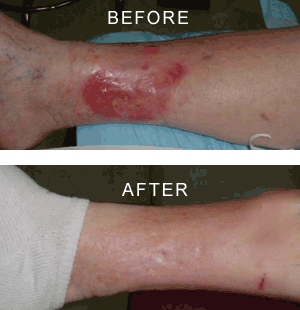 Nelson Vein & Surgical Services | Before and After | endovenous laser therapy