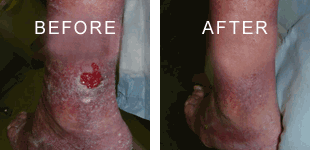 Nelson Vein & Surgical Services | Before and After | sclerotherapy treatment