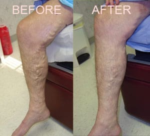 Nelson Vein & Surgical Services | Before and After | endovenous laser ablation