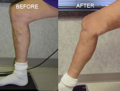 Nelson Vein & Surgical Services | Before and After | radiofrequency ablation