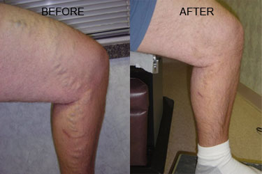 Nelson Vein & Surgical Services | Before and After | ambulatory phlebectomy