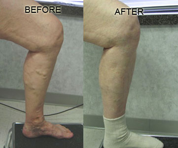 Nelson Vein & Surgical Services | Before and After | endovenous radiofrequency ablation of her perforator vein with ambulatory phlebectomy